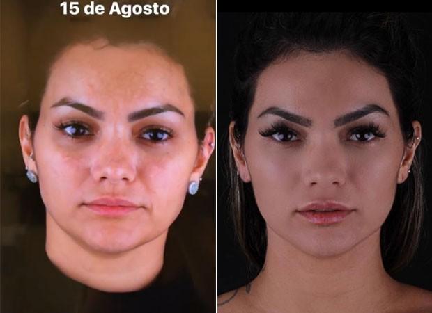 Kelly Key no antes e depois do microagulhamento  (Foto: Reprodução)