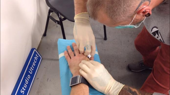 Chips foram implantados por meio de injeção entre os dedos polegar e indicador (Foto: Reprodução/Ars Technica)