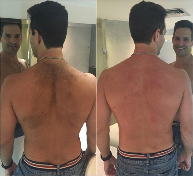 Antes e depois da depilação: Iran Malfitano retira os pelos das costas com cera quente e diz que dói demais (Foto: Divulgação)