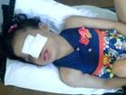 Após 5 meses, criança que perdeu parte do rosto com doença tem alta