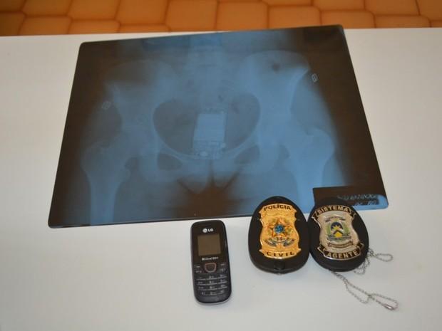 Radiografia de celular encontrado em órgão genital de mulher (Foto: Divulgação/Edson Gilmar)