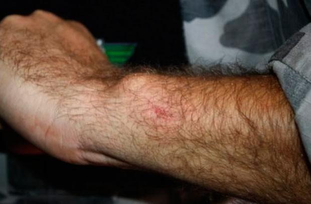 Segundo relatório, PM teve braço lesionado por pedra arremessada por manifestantes  (Foto: Divulgação/Polícia Militar do RN)