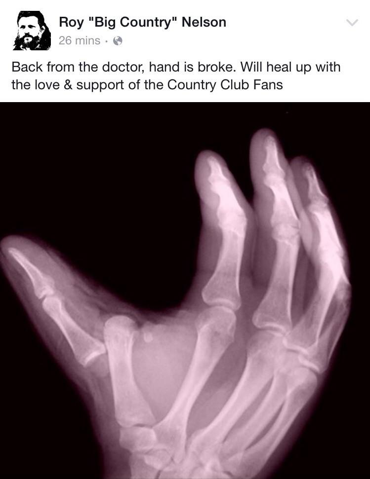 Mão quebrada Roy Nelson UFC