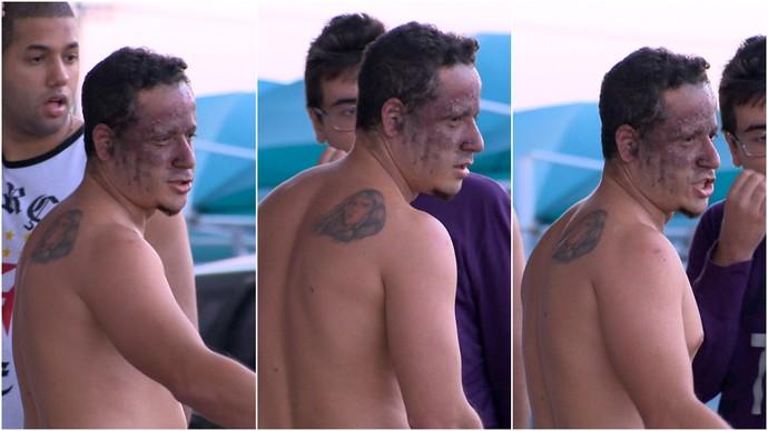 Sinalizador explode e queima  rosto de torcedor na chegada do Vasco ao Espírito Santo (Foto: Reprodução/TV Gazeta)