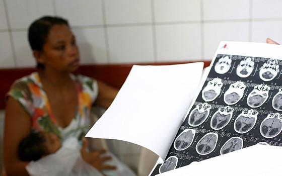 Ana Paula apresenta os exames de tomografia do filho D.M, de 1 mês e 14 dias, que tem   sinais de microcefalia (Foto: CARLOS EZEQUIEL VANNONI/ESTADÃO CONTEÚDO)