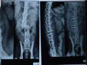 Radiografias mostram diferença da coluna de Léo entre o dia da fratura (esq.) e o pós-cirúrgico (dir.) (Foto: Bruno Favaro/RPC)