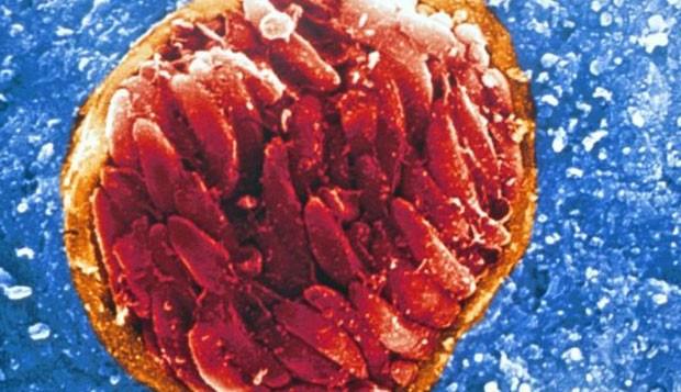 Adultos com IED mostraram propensão duas vezes maior de infecção em estudo (Foto: Universidade de Chicago)
