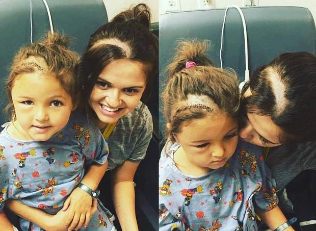 Mamãe raspa a cabeça para que sua filha não se sinta diferente após cirurgia no cérebro (Foto: Reprodução/Facebook)