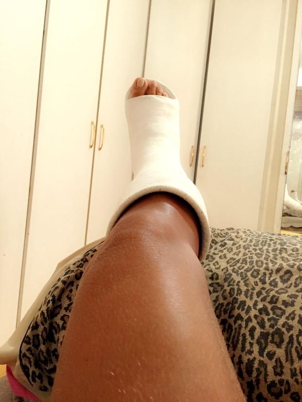 Solange Gomes quebra o tornozelo  (Foto: Arquivo Pessoal)