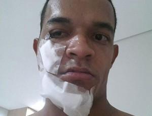 Jheimy série b rosto quebrado (Foto: Reprodução)