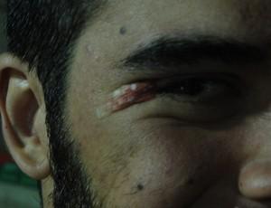 Gegê mostra a marca que ficou em seu olho direito após choque com Jamaal (Foto: Fabio Leme)