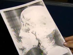 Laudo da jovem agredida com uma cotovelada em São Roque (Foto: Reprodução/TV TEM)