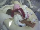 Polvo de crochê ajuda a salvar a vida de bebês prematuros