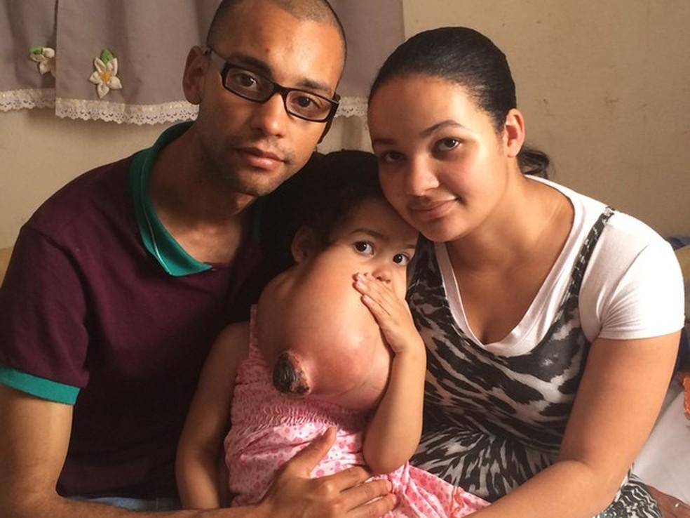 Os pais da menina Melyssa conseguiram ajuda para tratar tumor raro e agressivo que provoca um crescimento de tumor gigante no rosto e pescoço (Foto: Gabriela Gonçalves/G1)