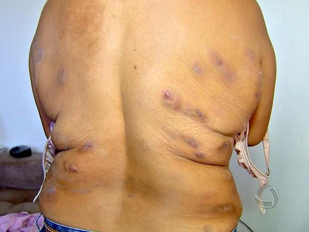 Pacientes ficaram om várias feridas durante tratamento na clínica  (Foto: Reprodução/TVCA)
