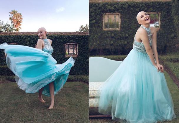 O câncer não me faz ser menos princesa, disse nas redes sociais  (Foto: Gerardo Garmendia)