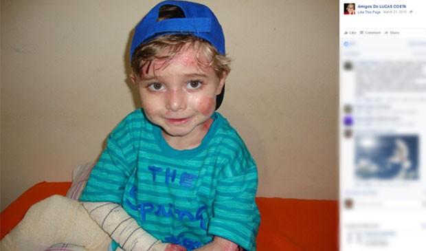 Lucas foi diagnosticado com a doença logo após nascer (Foto: Reprodução/Facebook)