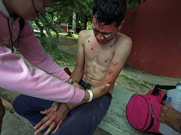 Manifestante ferido recebe ajuda durante manifestação em San Cristobal nesta segunda (25) (Foto: AFP PHOTO/GEORGE CASTELLANOS)