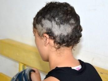 Menina teve a cabeça raspada pelo pai. (Foto: Varlei Cordova/ Agora MT)