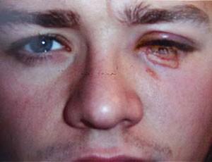 Jamie Tandy, ex-atacante do Manchester City (Foto: Reprodução / The Sun)
