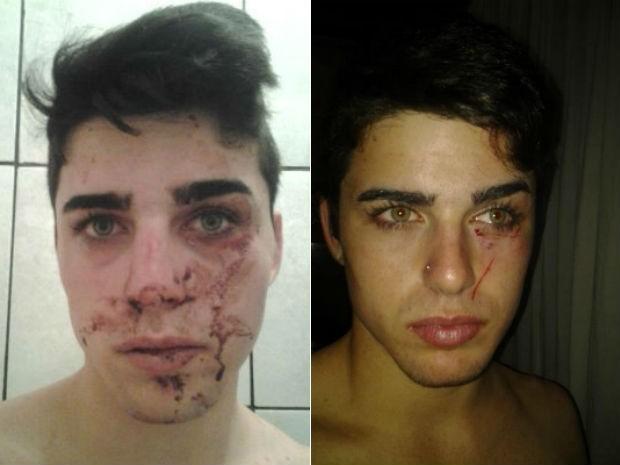 Maisson registrou em fotos as agressões ocorridas em Cascavel (Foto: Arquivo pessoal)