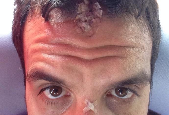 Fernando Penna exibe os pontos que levou na testa e nariz (Foto: Arquivo pessoal)