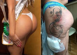 Andressa Urach - Bumbum antes e depois (Foto: Divulgação - Instagram / Reprodução - AKM-GSI / AKM-GSI)