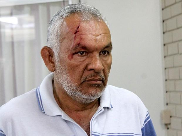 Professor José Teixeira sofreu corte no supercílio na Secretaria de Educação do RN (Foto: Lenilton Lima)