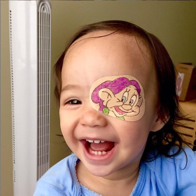 Pai criativo faz tapa-olhos personalizados para sua filha de 1 ano com catarata