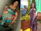 Mulher perde mais de 70 quilos após pôr balão no estômago: 'outra pessoa'