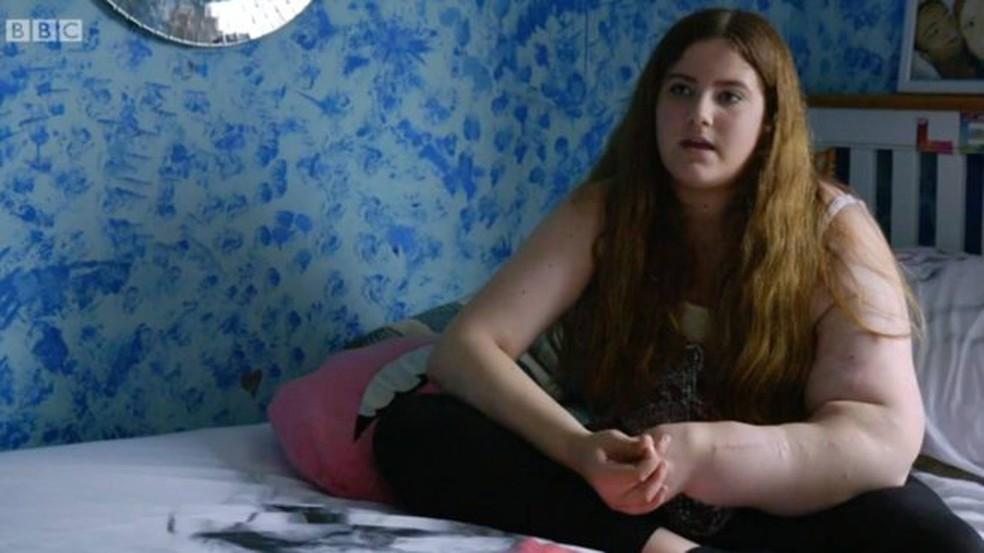 Leah já passou mais de 30 cirurgias para reduzir o tamanho do seu braço  (Foto: BBC)
