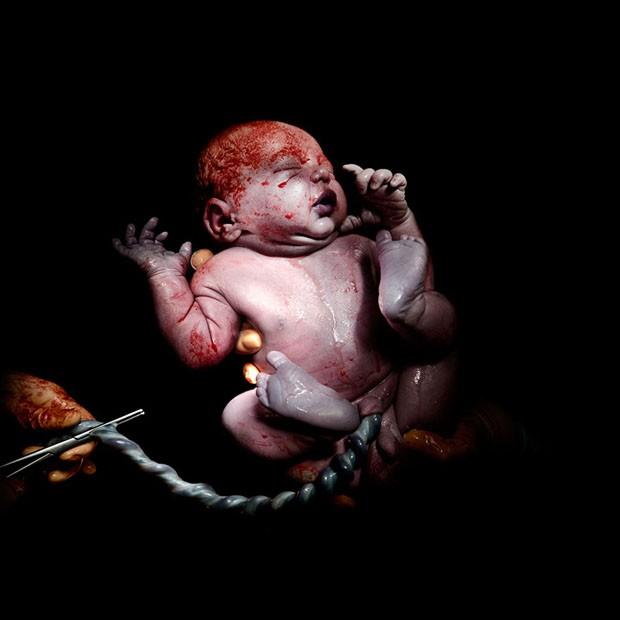 Fotos impressionantes mostram os primeiros segundos de vida de um bebê