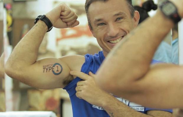 Emerson Bisan resolveu fazer tatuagem para identificar-se como diabético (Foto: Casa de Vídeo/Divulgação)