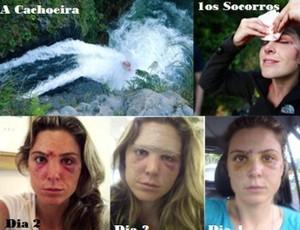 Karina Oliani ferimento (Foto: Reprodução internet)