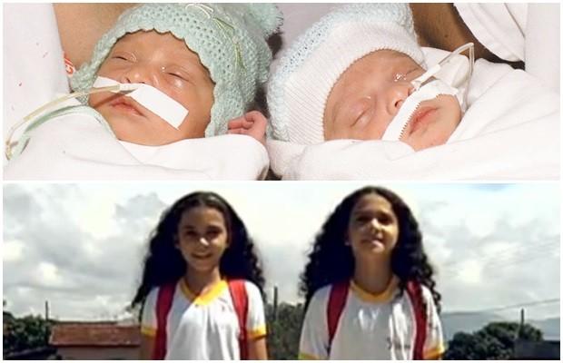 Raniela e Rafaela logo após a separação e hoje, aos 12 anos, em Goianésia, Goiás (Foto: Arquivo Pessoal)