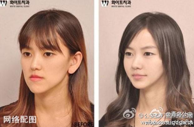 Para provarem identidade, pacientes que buscam cirurgia plástica na Coreia do Sul recebem 'documento' atestando que fizeram procedimento estético no país (Foto:  Reprodução/Weibo/Qingdao)