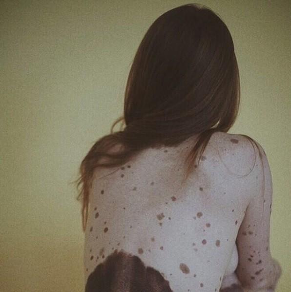 Alejandra Savoia, espanhola, recebeu convite para mostrar suas manchas nas costas (Foto: Reprodução/ Instagram/ @alejandrasavoia)