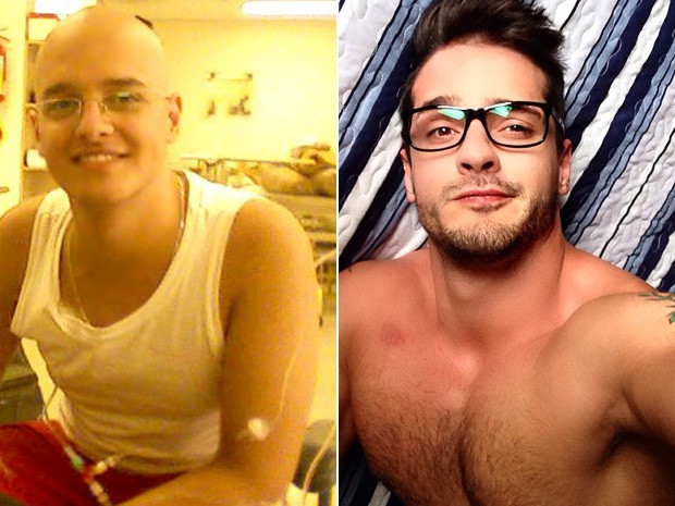 Erik Armiliato Gomes, de 27 anos, superou o câncer e o sobrepeso: à esquerda, foto tirada durante seu tratamento contra um linfoma; à direita, foto atual (Foto: Erik Armiliato/Arquivo Pessoal)