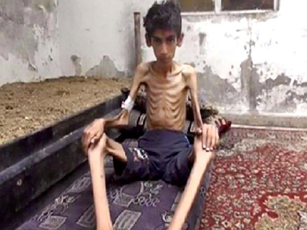 Imagem sem data mostra menino que passa por fome em Madaya, na Síria (Foto: Local Revolutionary Council in Madaya via AP)