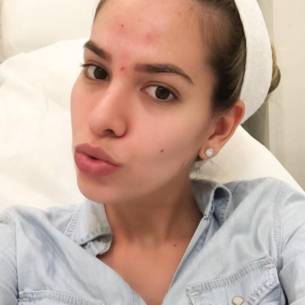 Adriana Sant'Anna coloca botox pela primeira vez: 'Muito feliz' (Foto: Reprodução/Instagram)