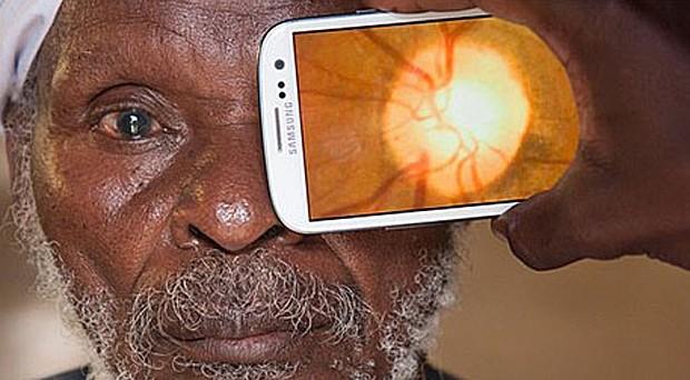 Aplicativo pode fazer exames de fundo de olho  (Foto: Andrew Bastawrous)