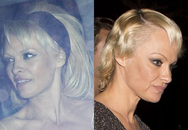 Pamela Anderson com look anterior e o atual (Foto: Grosby Group e AKM-GSI)