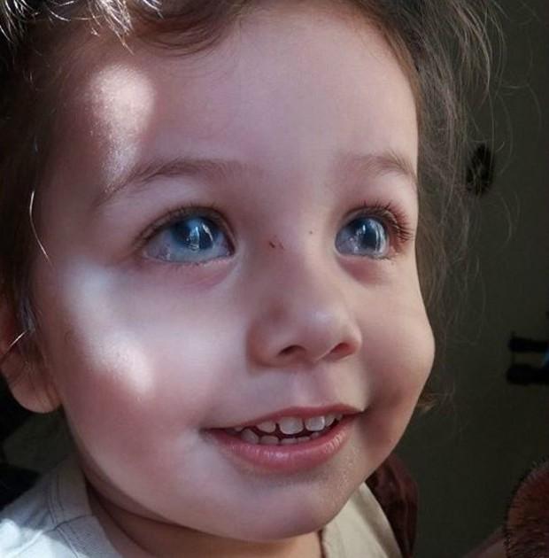 Nicolly não enxergava por causa de um glaucoma e de uma opacidade da córnea  (Foto: Arquivo pessoal/BBC)