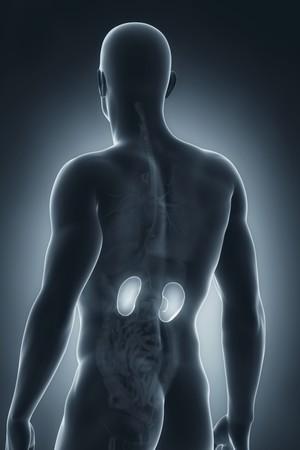 Os casos de pedra nos rins aumentam no verão (Foto: Thinkstock)
