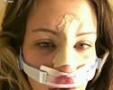 Ex-lutadora Miesha Tate faz cirurgia no nariz e posta imagem em rede social