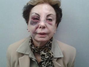 Beatriz Segall culpa a Prefeitura pela queda (Foto: Arquivo Pessoal)