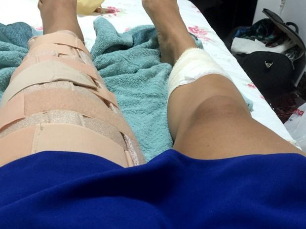 Paloma Gurgel foi atingida no joelho e não consegue andar (Foto: Paloma Gurgel/Arquivo Pessoal)