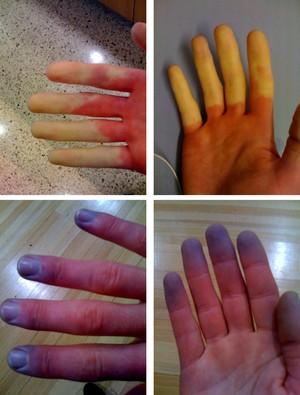FROSTBITE dedos congelados Eu Atleta (Foto: Reprodução internet)