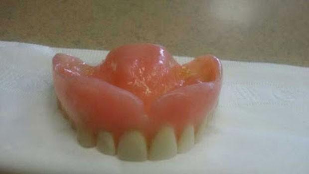 Dentadura foi achada perto de restaurante no Canadá (Foto: Reprodução/Facebook/Jane Groenewegen)