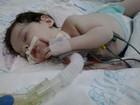 Bebê com doença rara morre após esperar 30 dias por cirurgia